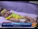 baby-with-leukemia-on-remission